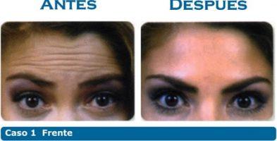 Botox y Materiales de relleno