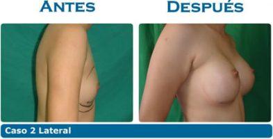 Implante de mamas